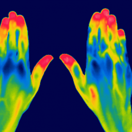 Thermo images hands
